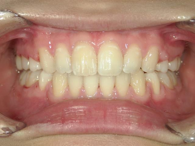 全顎ワイヤー矯正 症例(1)