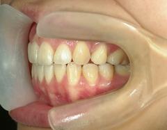 舌側ワイヤー矯正 症例(1)