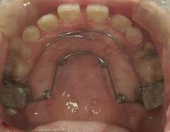 矯正装置 治療例(1)第一次矯正症例