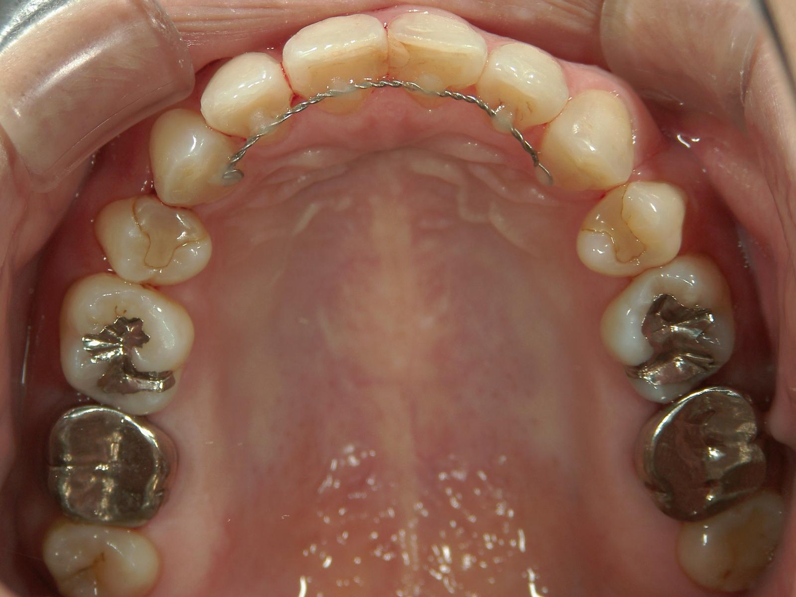 全顎ワイヤー矯正 症例(5)