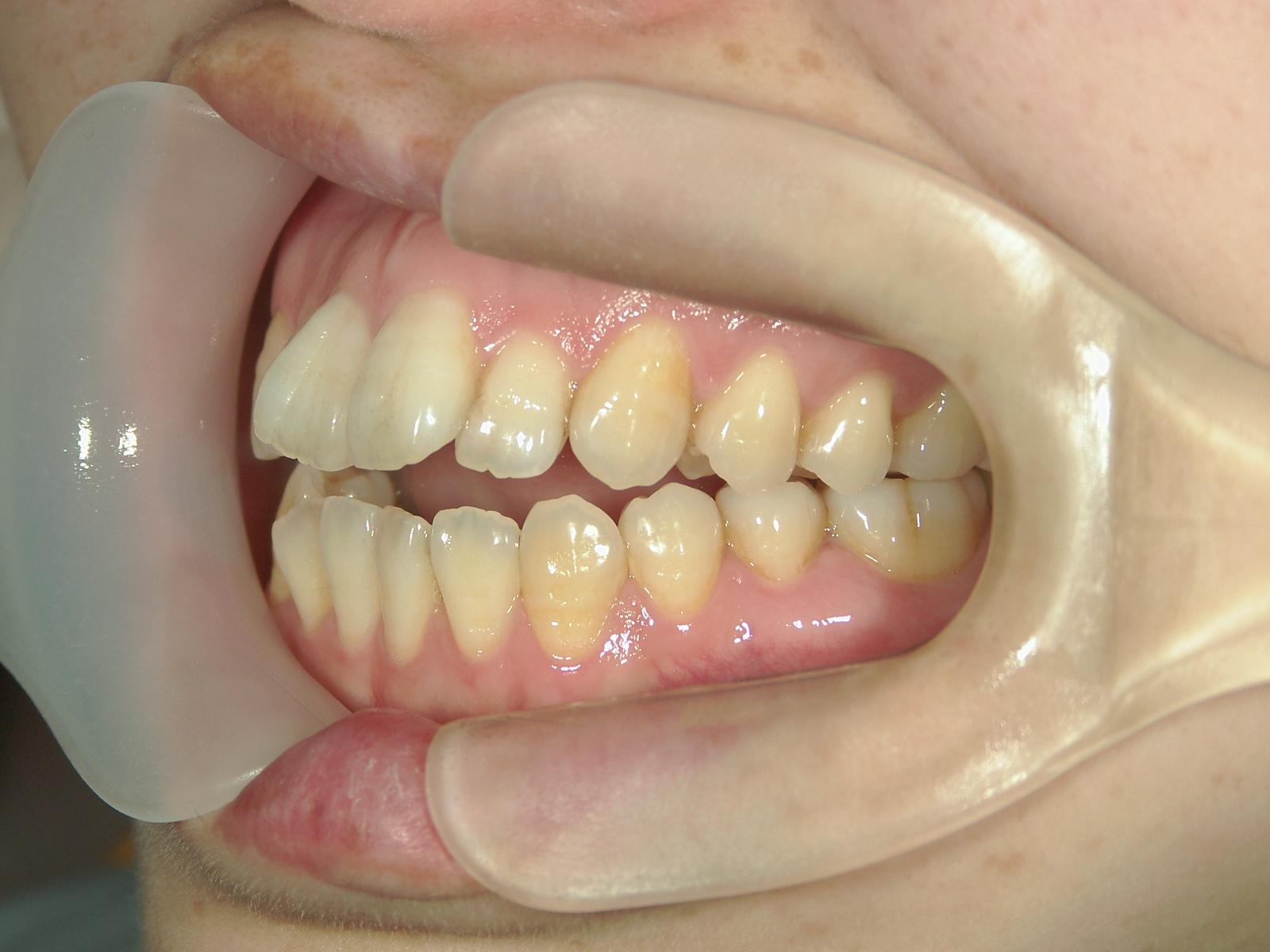 全顎ワイヤー矯正 症例(9)