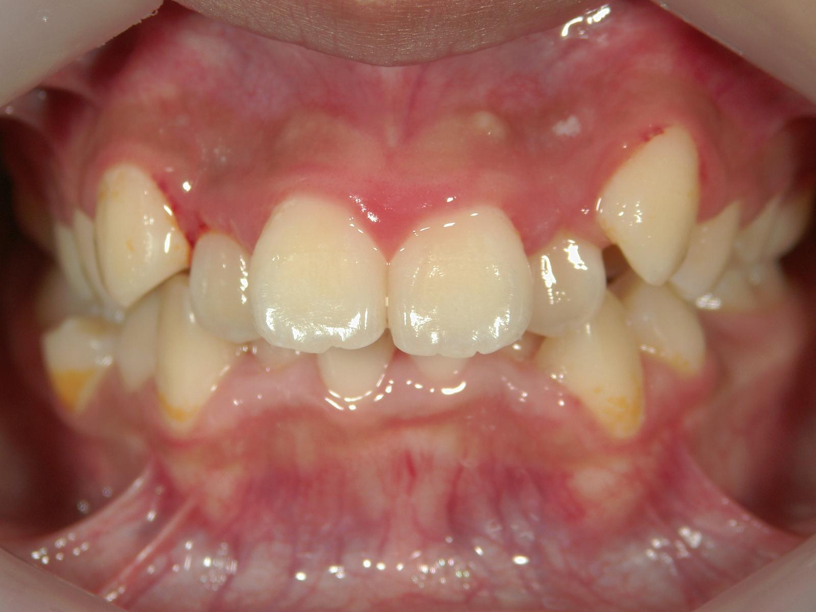 全顎ワイヤー矯正 症例(7)