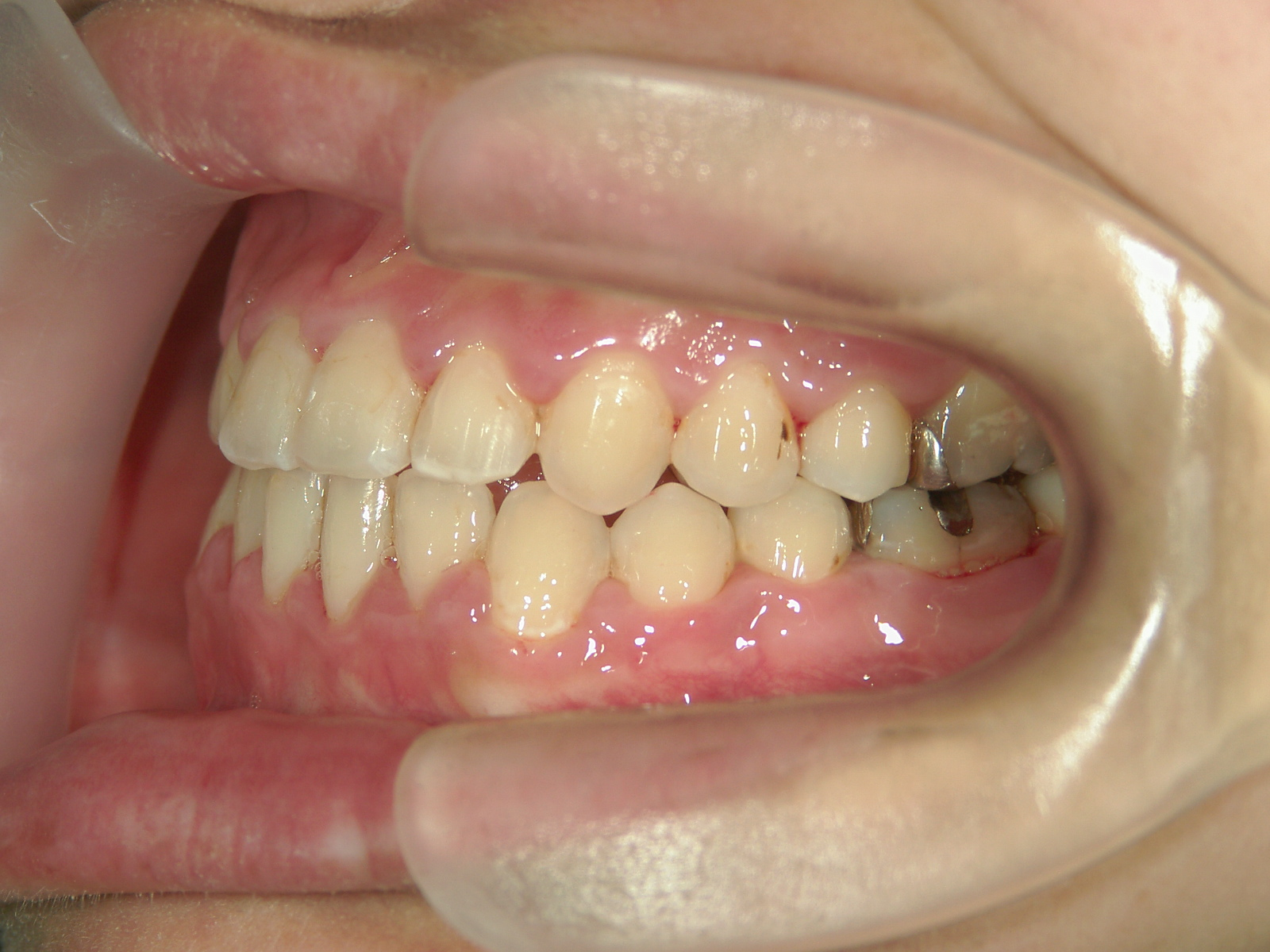 全顎ワイヤー矯正 症例(11)