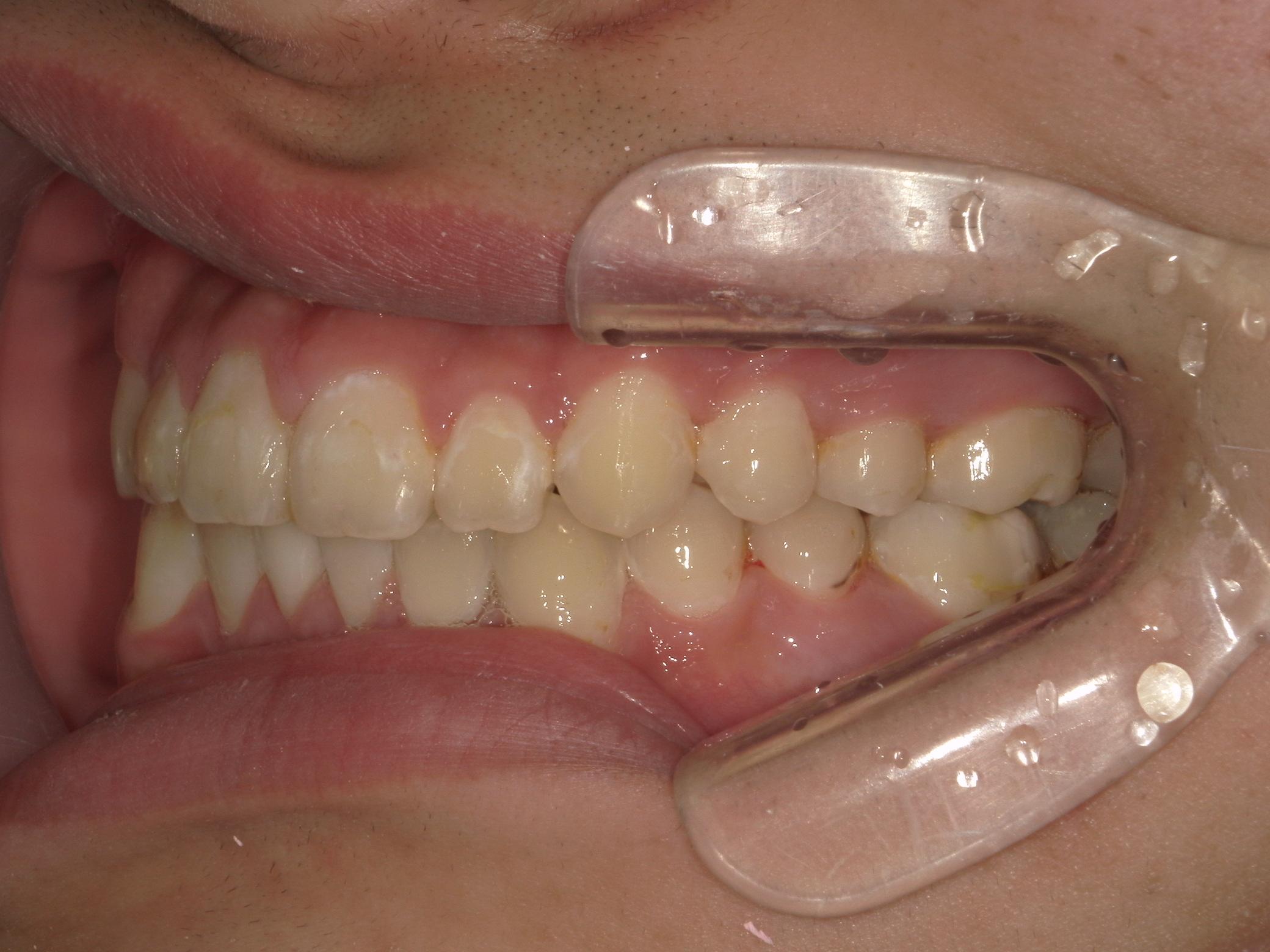全顎ワイヤー矯正 症例(8)