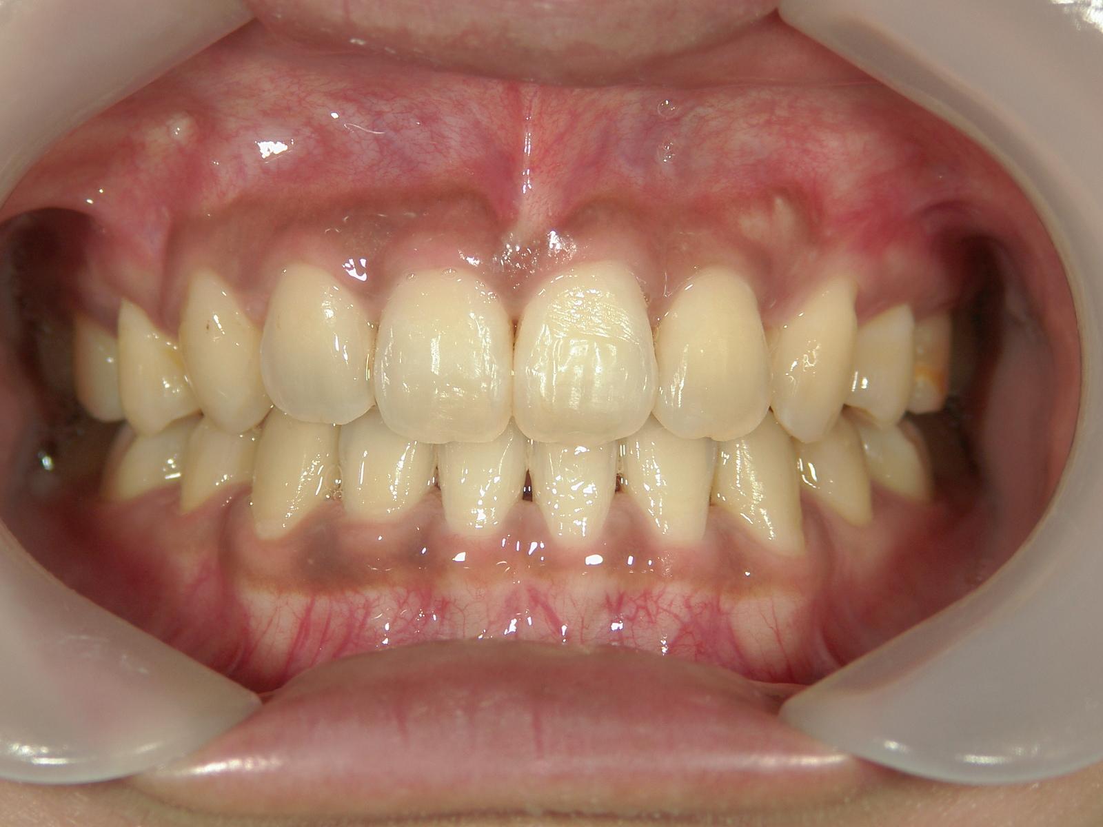 全顎ワイヤー矯正 症例(6)