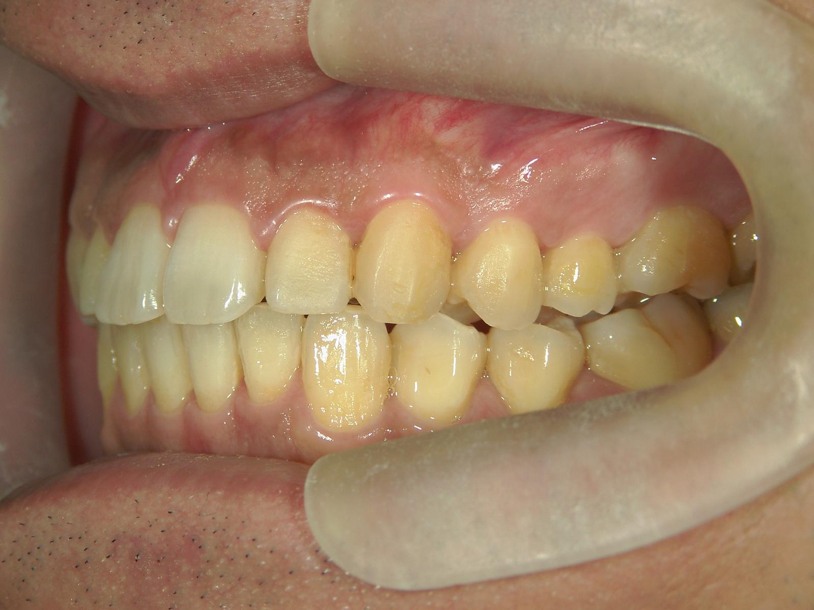 舌側プチワイヤー矯正 症例(6)