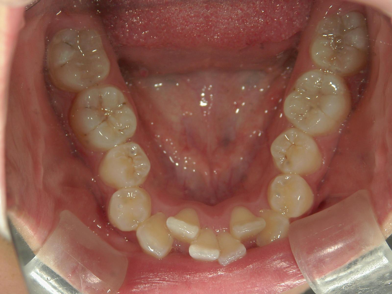 舌側ワイヤー矯正 症例(2)