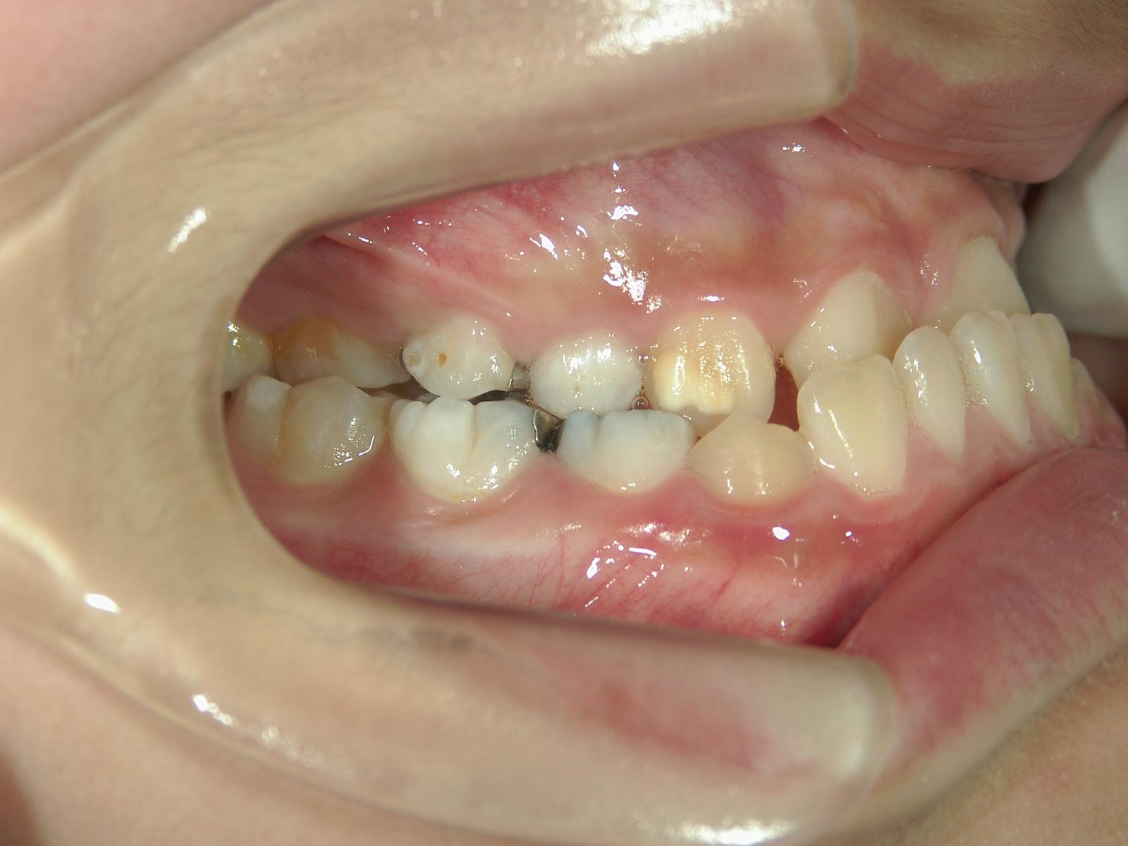 矯正装置 治療例(2)第一次矯正症例