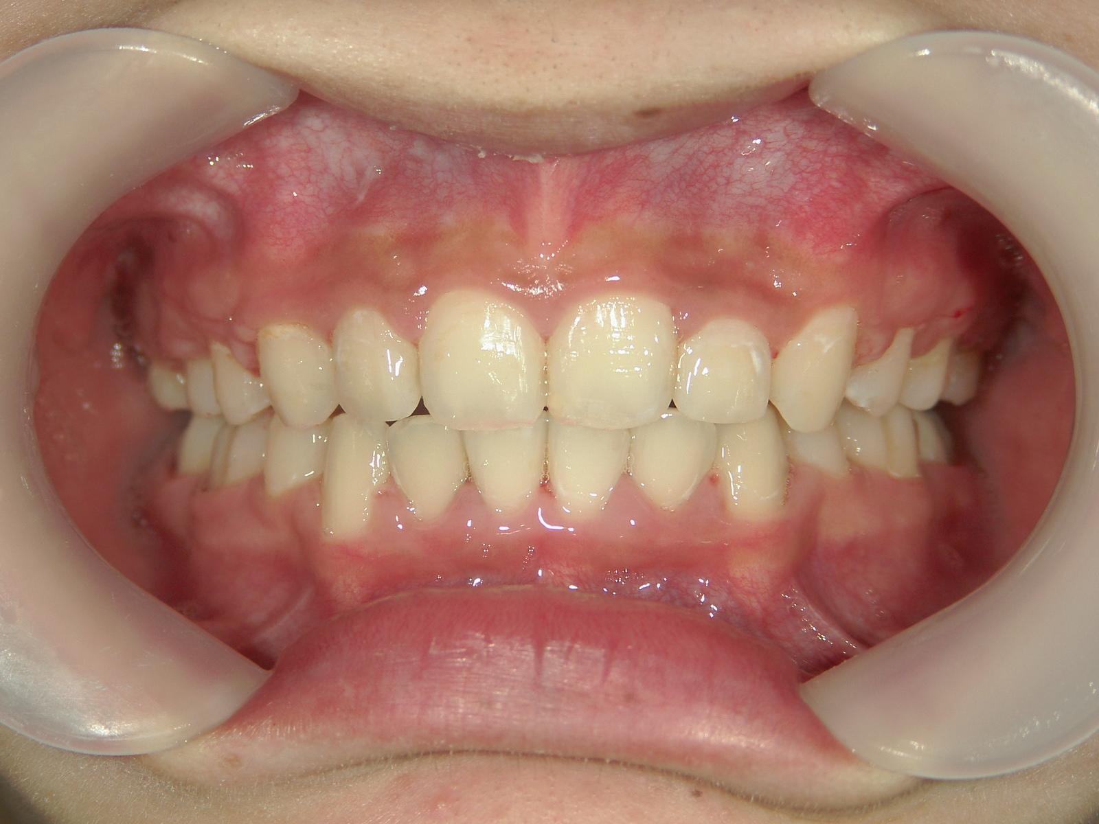 全顎ワイヤー矯正 症例(2)
