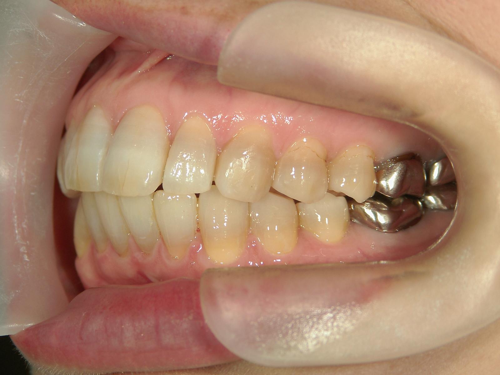 舌側ワイヤー矯正 症例(4)