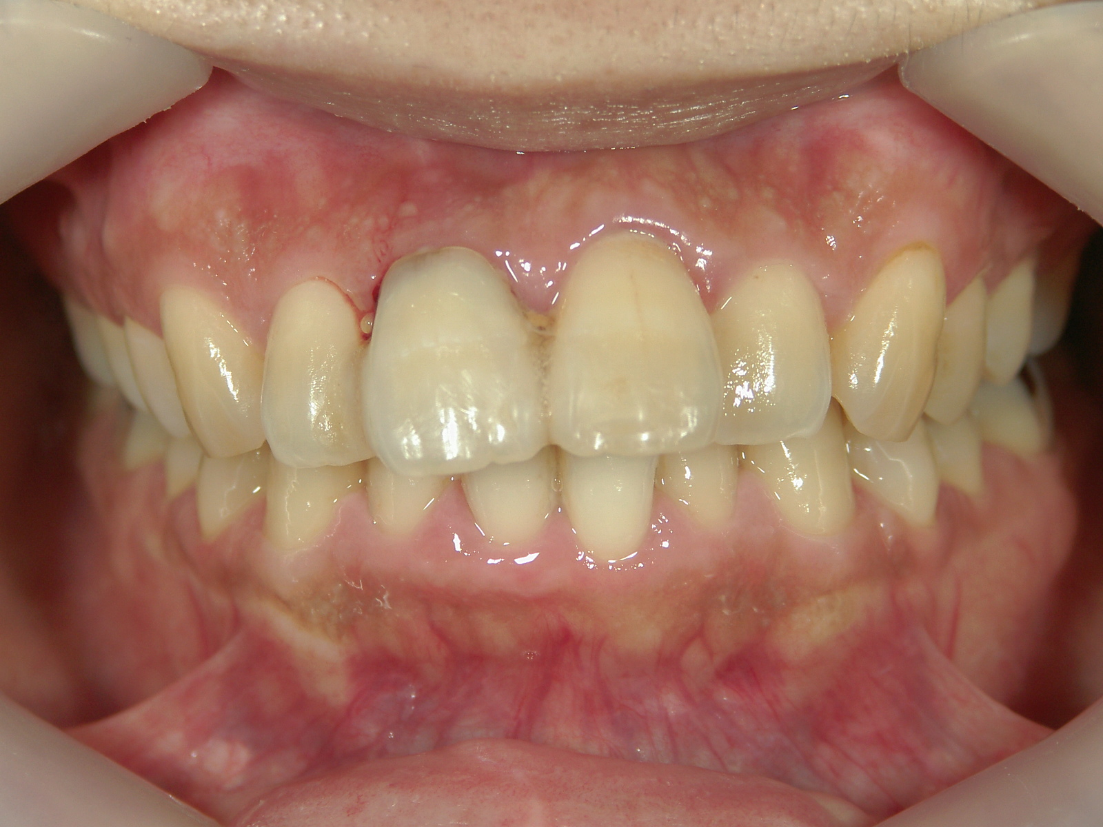 前歯抜歯閉鎖症例 治療例(2) 右上中切歯抜歯