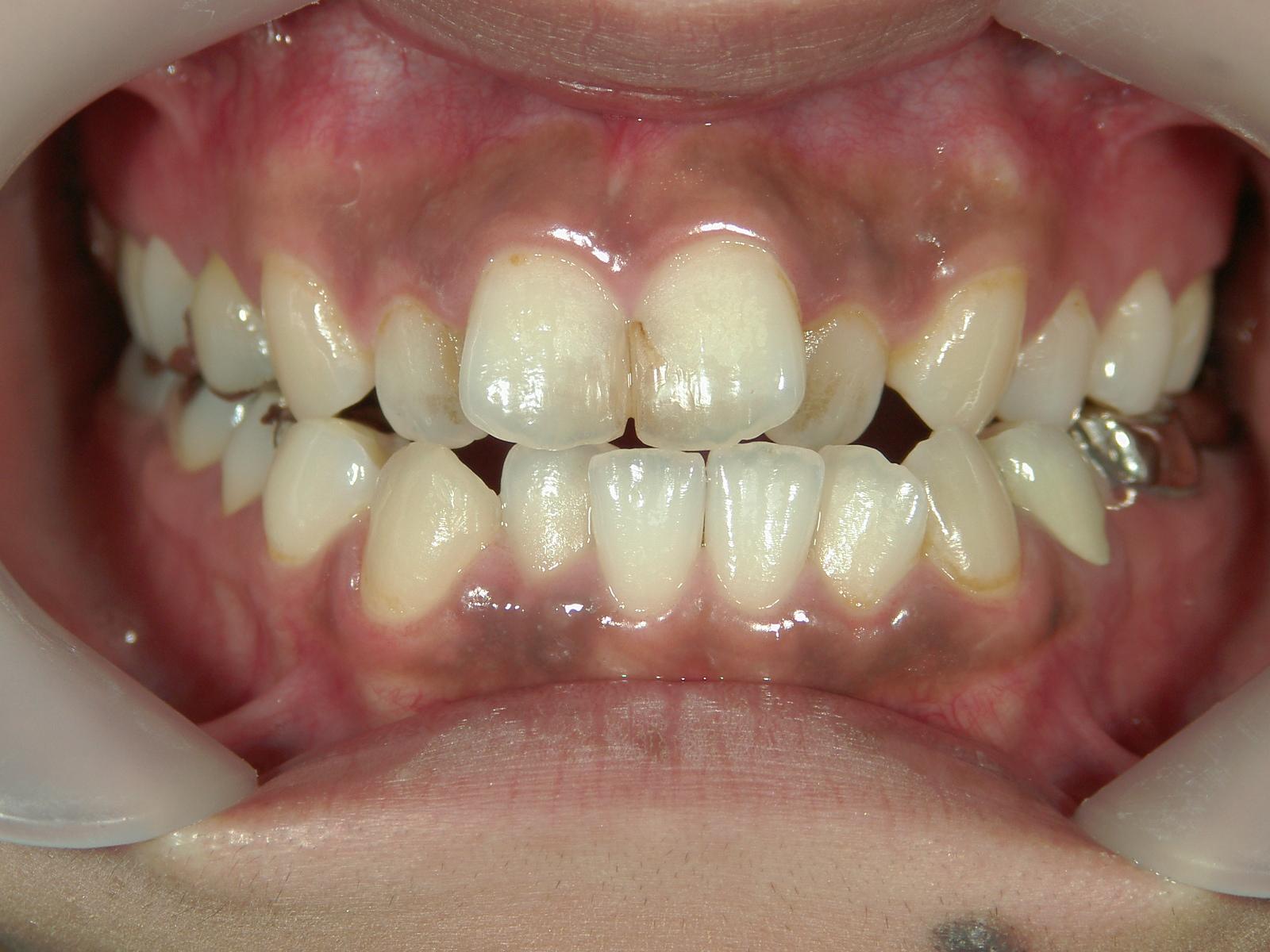 全顎ワイヤー矯正 症例(3)
