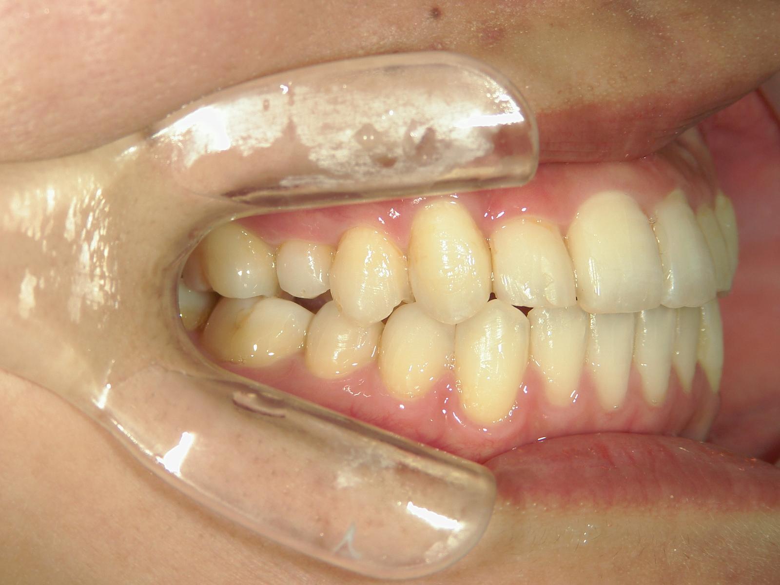 舌側ワイヤー矯正 症例(5)