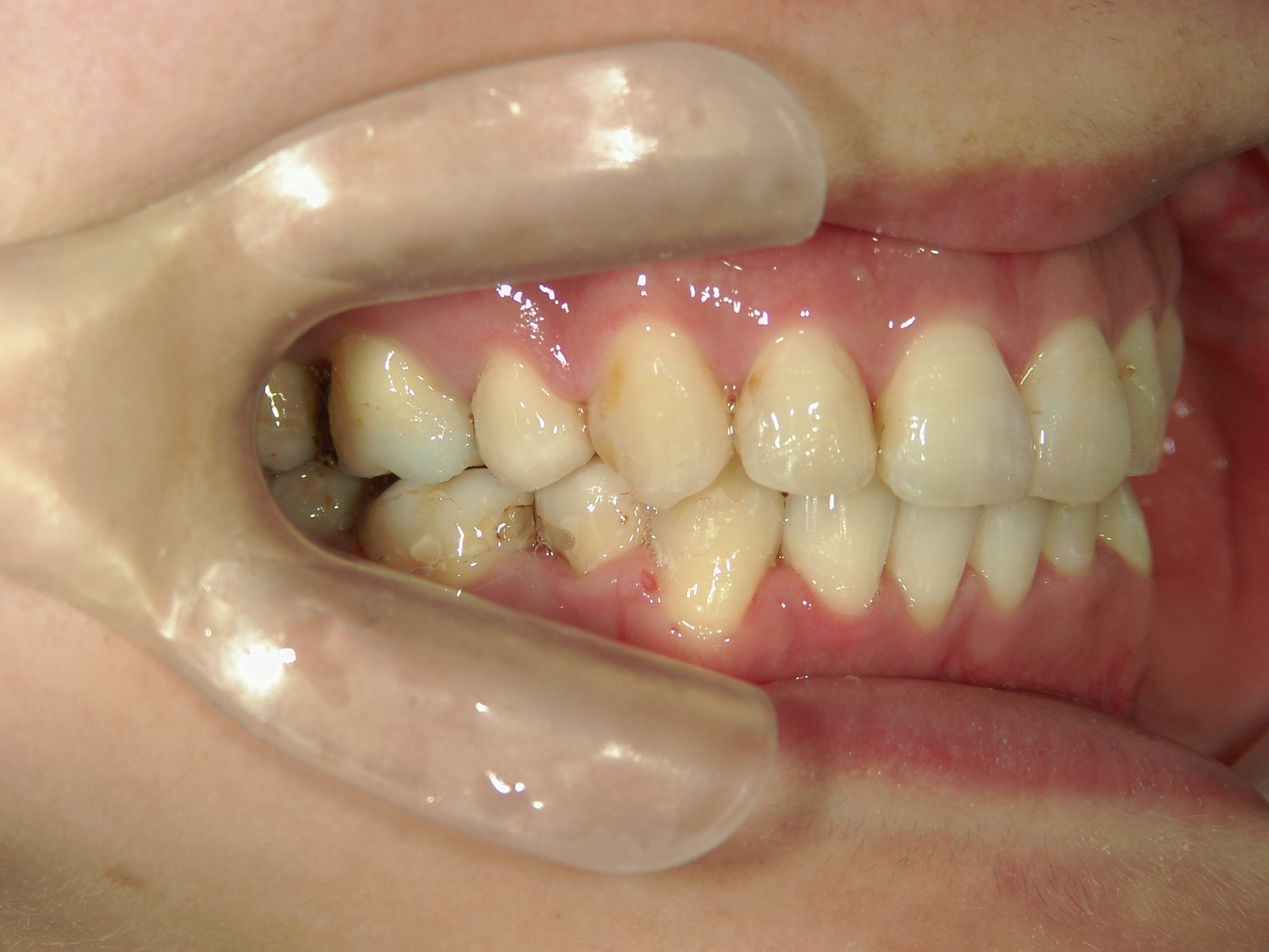 舌側ワイヤー矯正 症例(3)