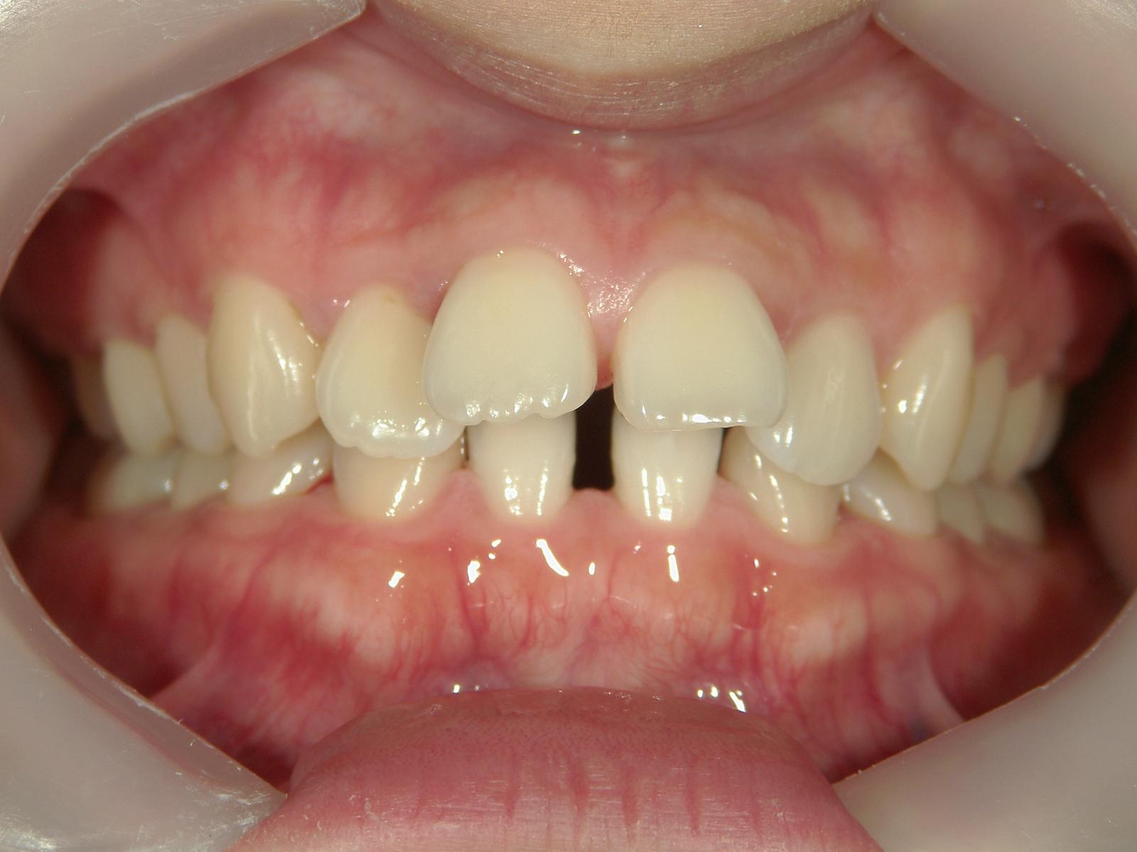 前歯抜歯閉鎖症例 治療例(3)下顎中切歯2本先天性欠損