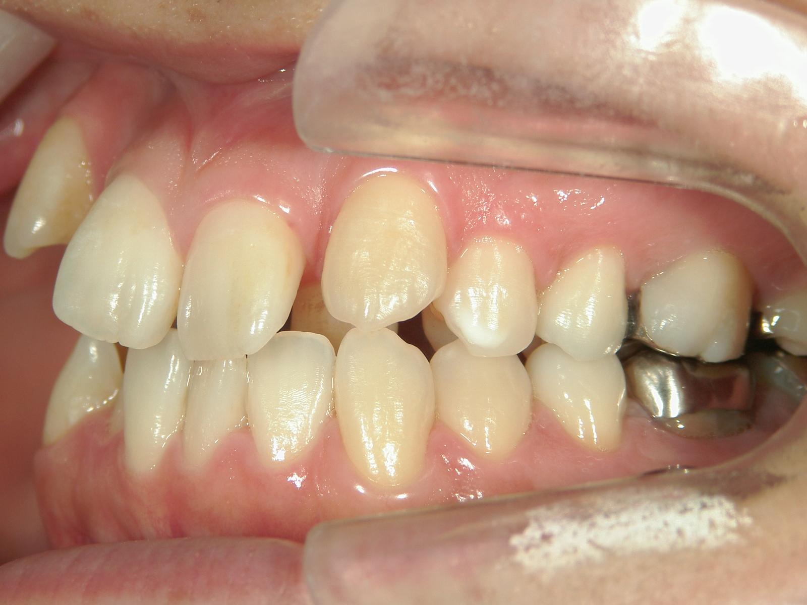 全顎ワイヤー矯正 症例(4)