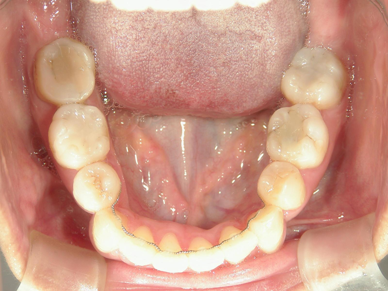 全顎ワイヤー矯正 症例(10)