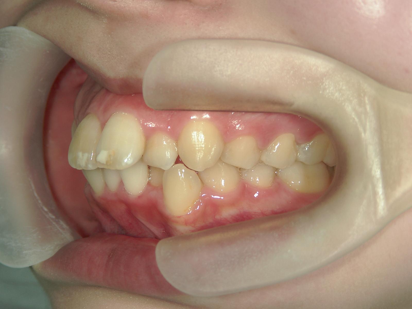 全顎ワイヤー矯正 症例(12)