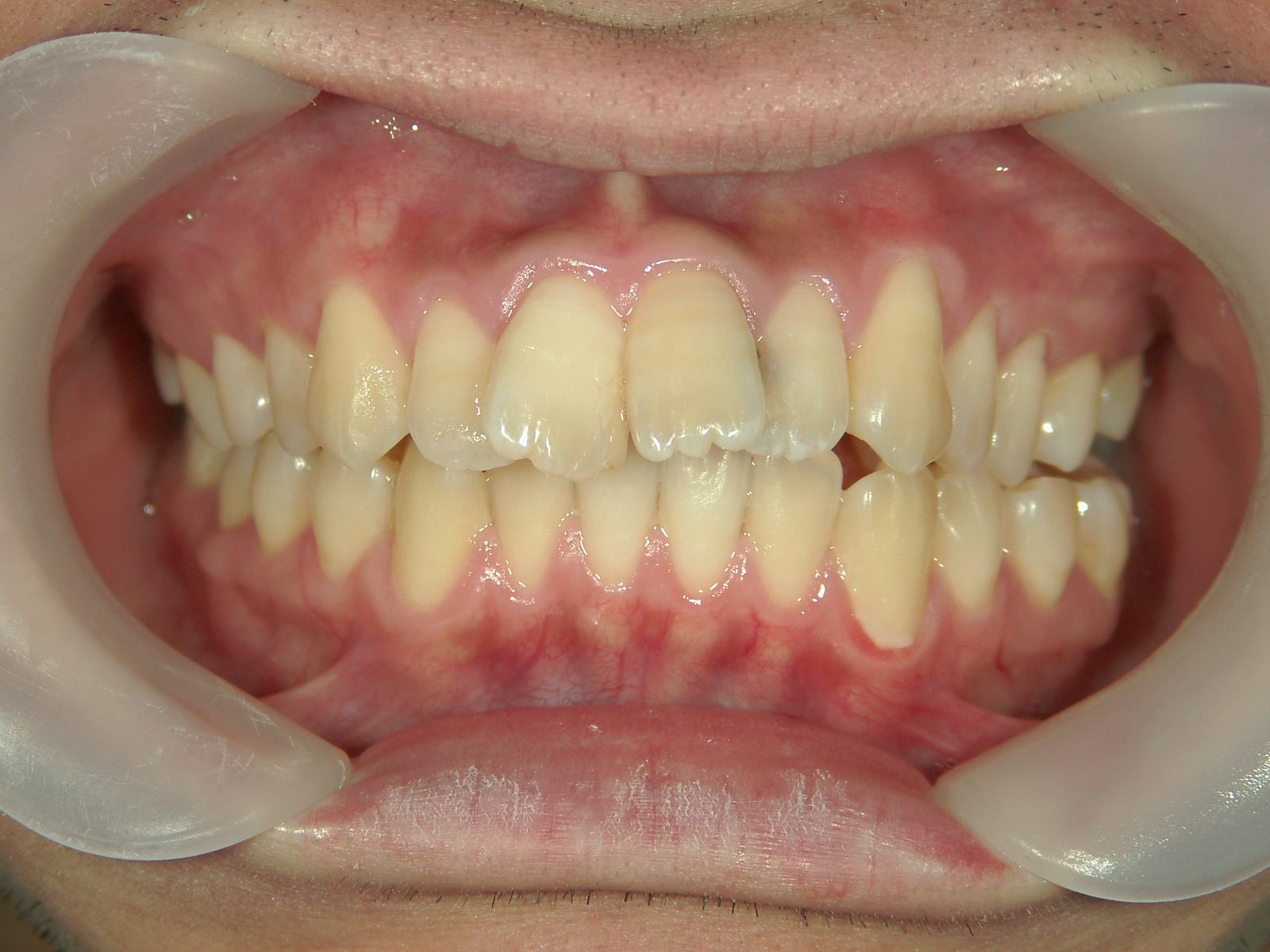 前歯部抜歯閉鎖症例 治療例(3) ㊤前歯部2本歯根吸収で歯根が短い為、抜歯