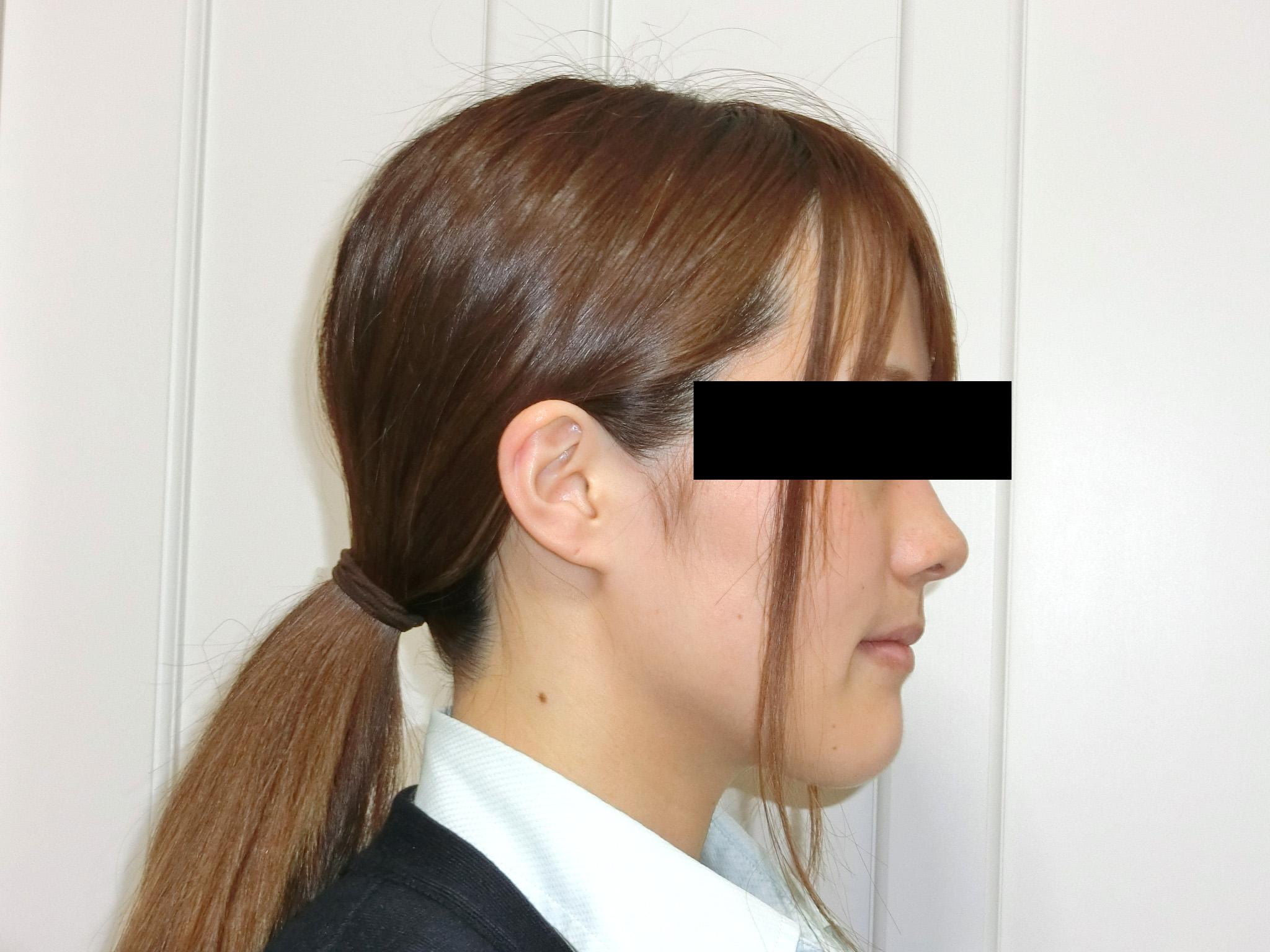 全顎ワイヤー矯正 症例(13)