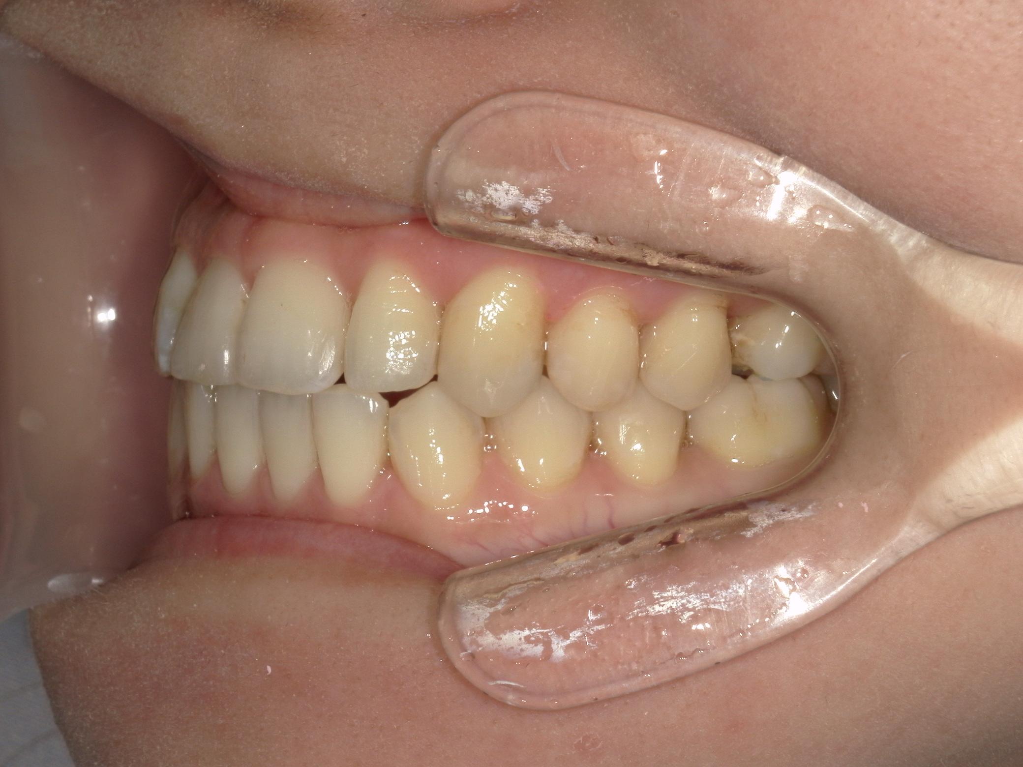 舌側ワイヤー矯正 症例(7)