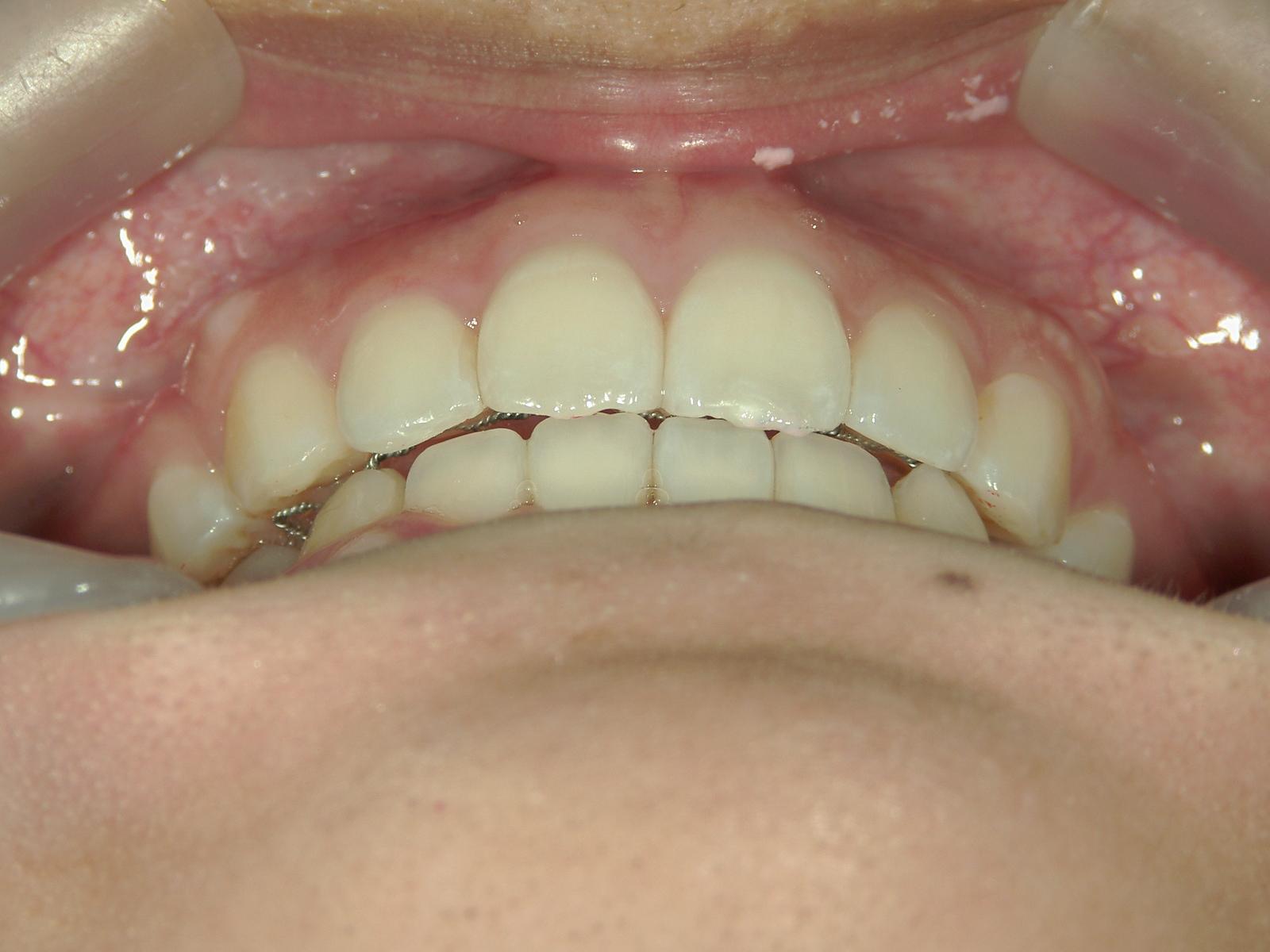 舌側ワイヤー矯正 症例(8)