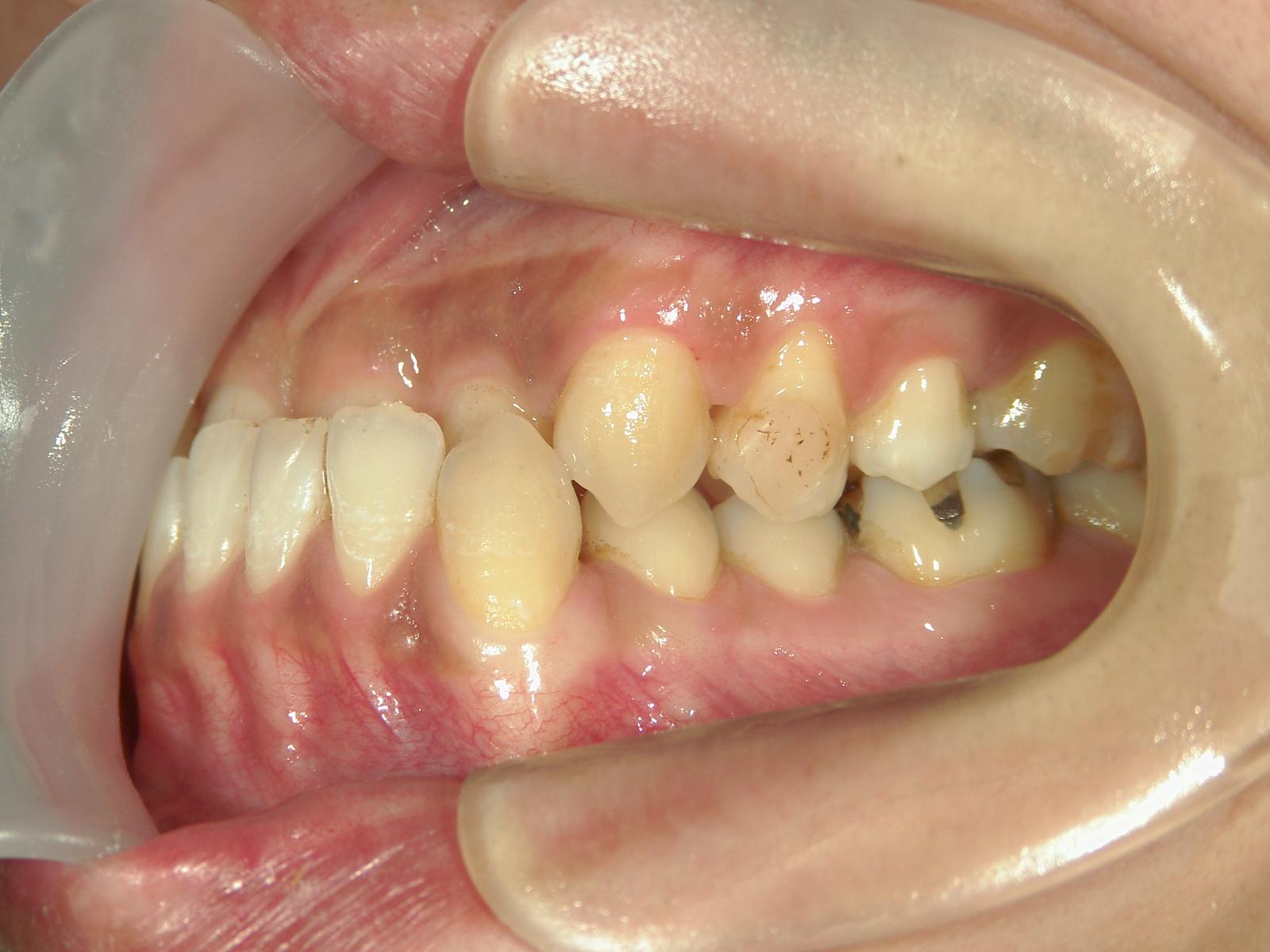 全顎ワイヤー矯正 症例(14)