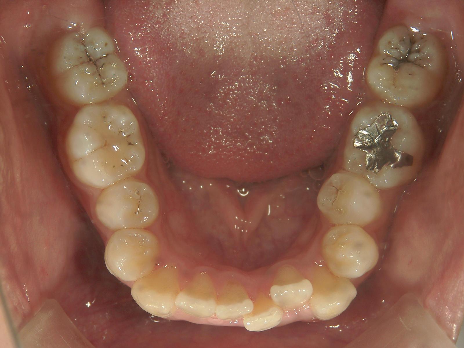舌側ワイヤー矯正 症例(9)