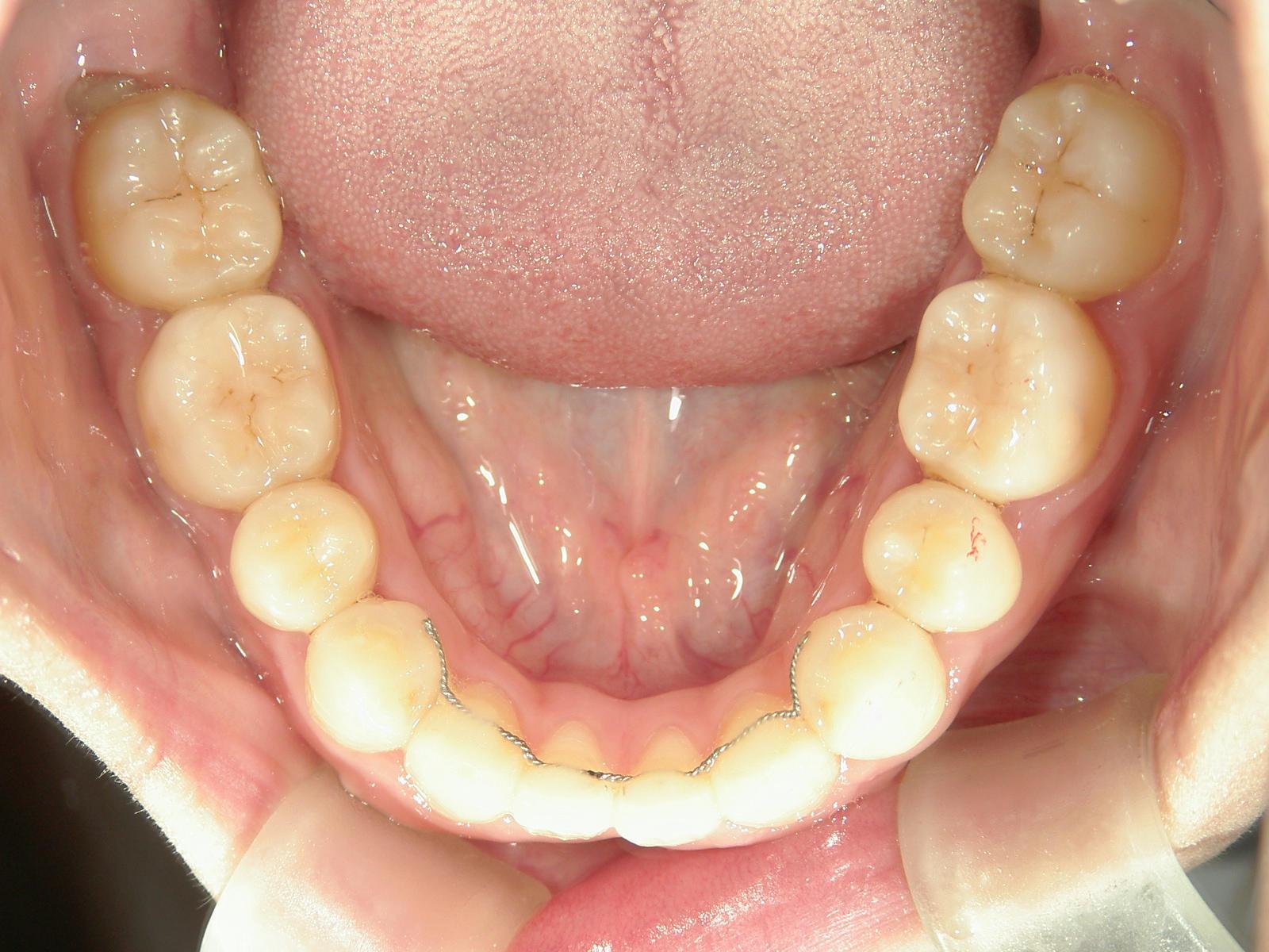全顎ワイヤー矯正 症例(15)