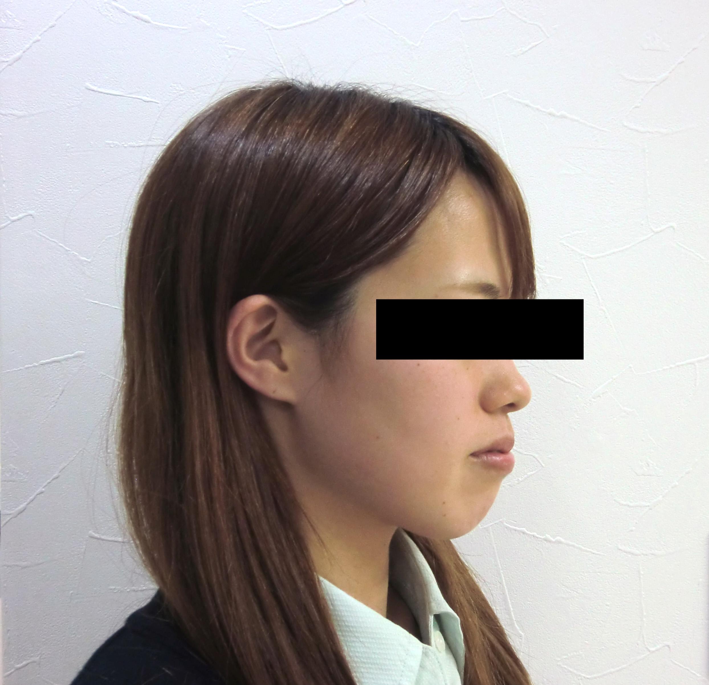 症例(6)