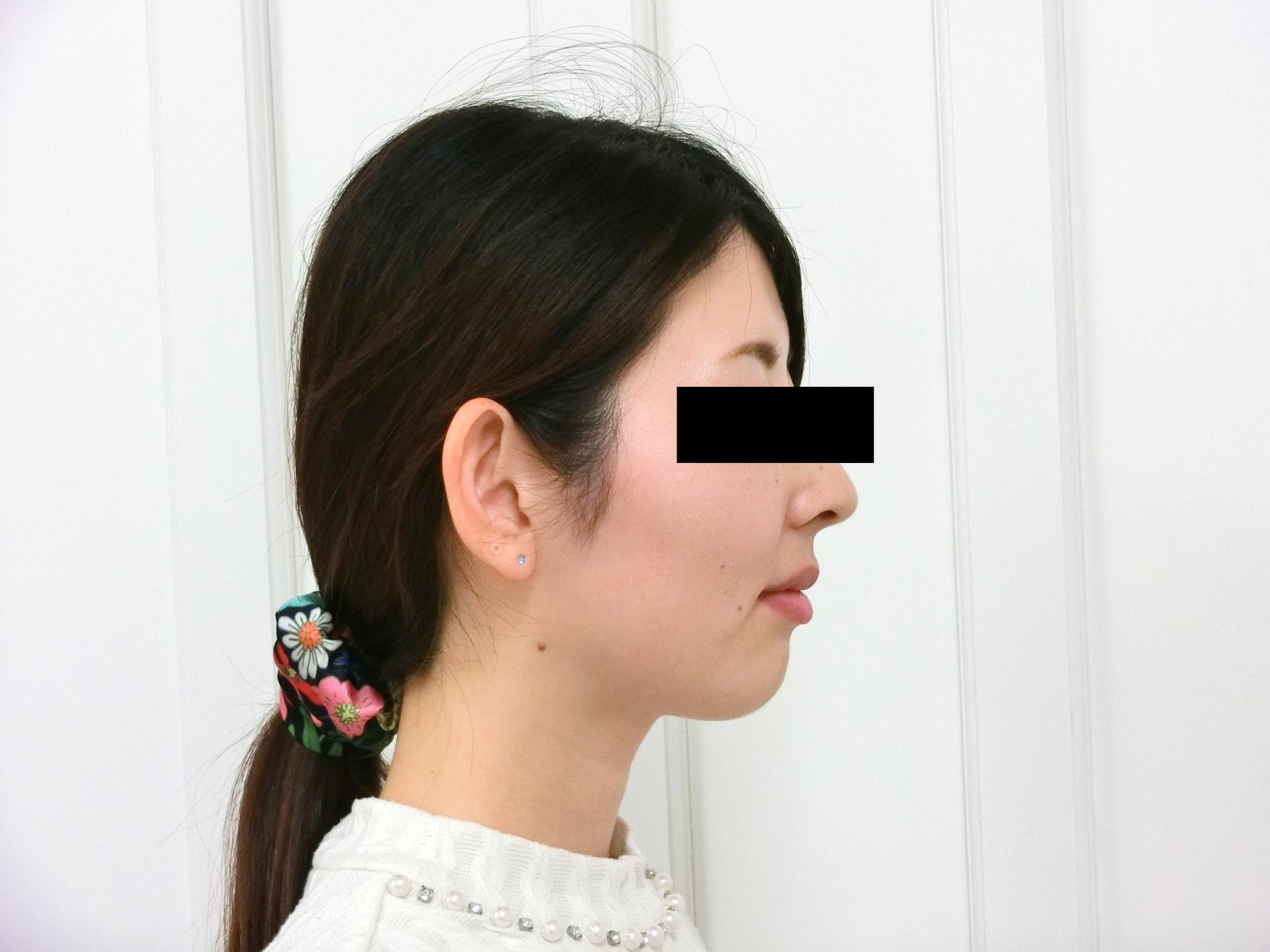 症例(5)