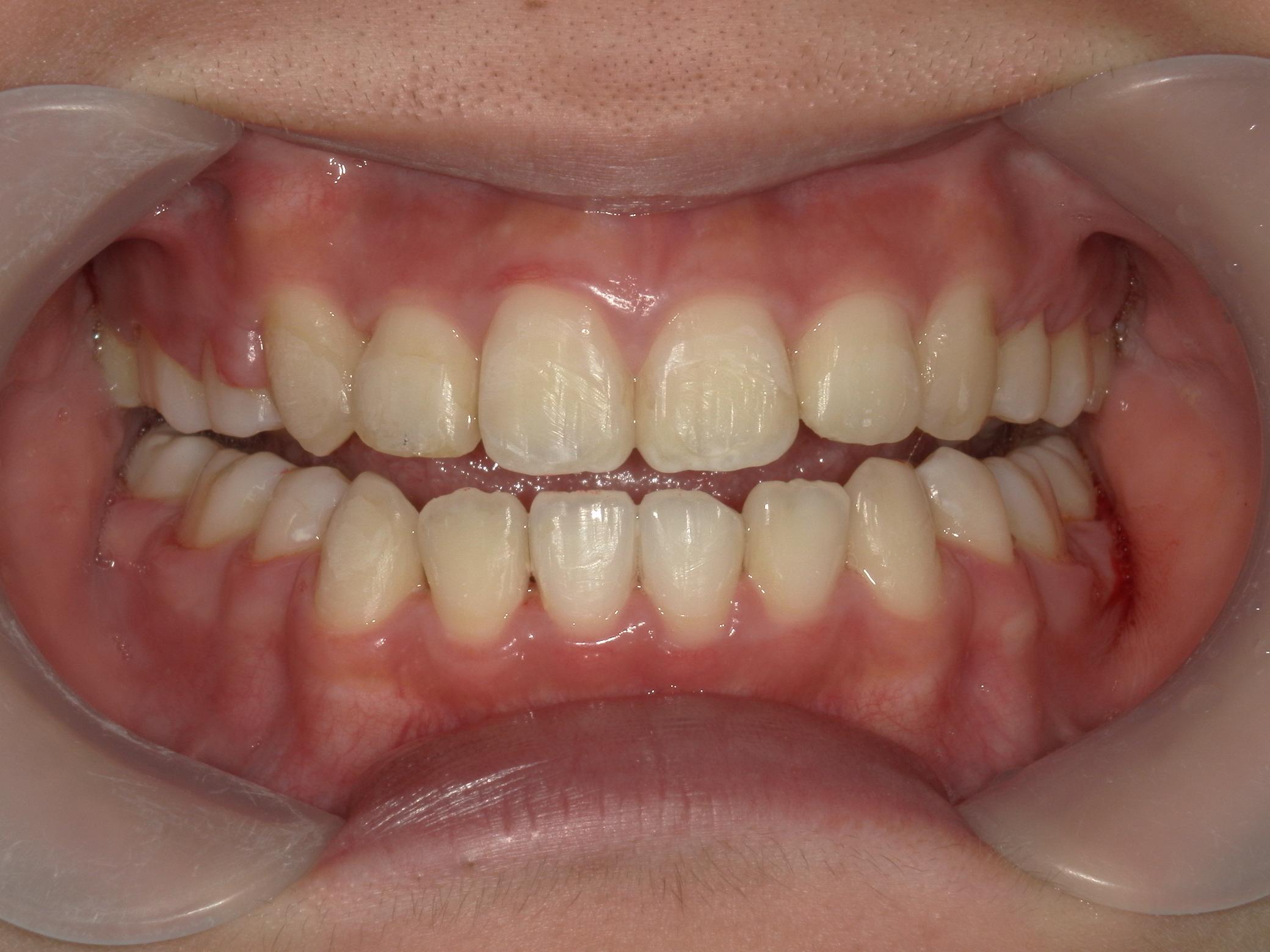 全顎ワイヤー矯正 症例(16)