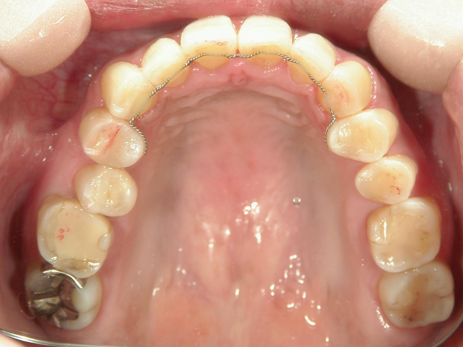 舌側ワイヤー矯正 症例(18)