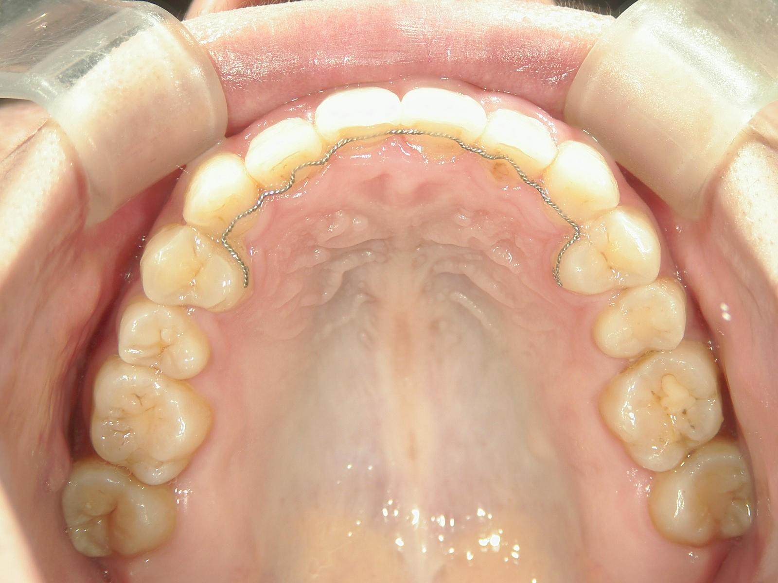 全顎ワイヤー矯正 症例(31)