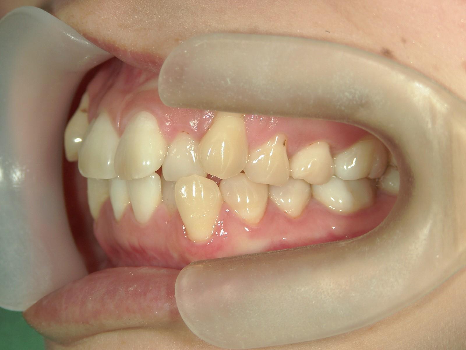 舌側ワイヤー矯正 症例(19)