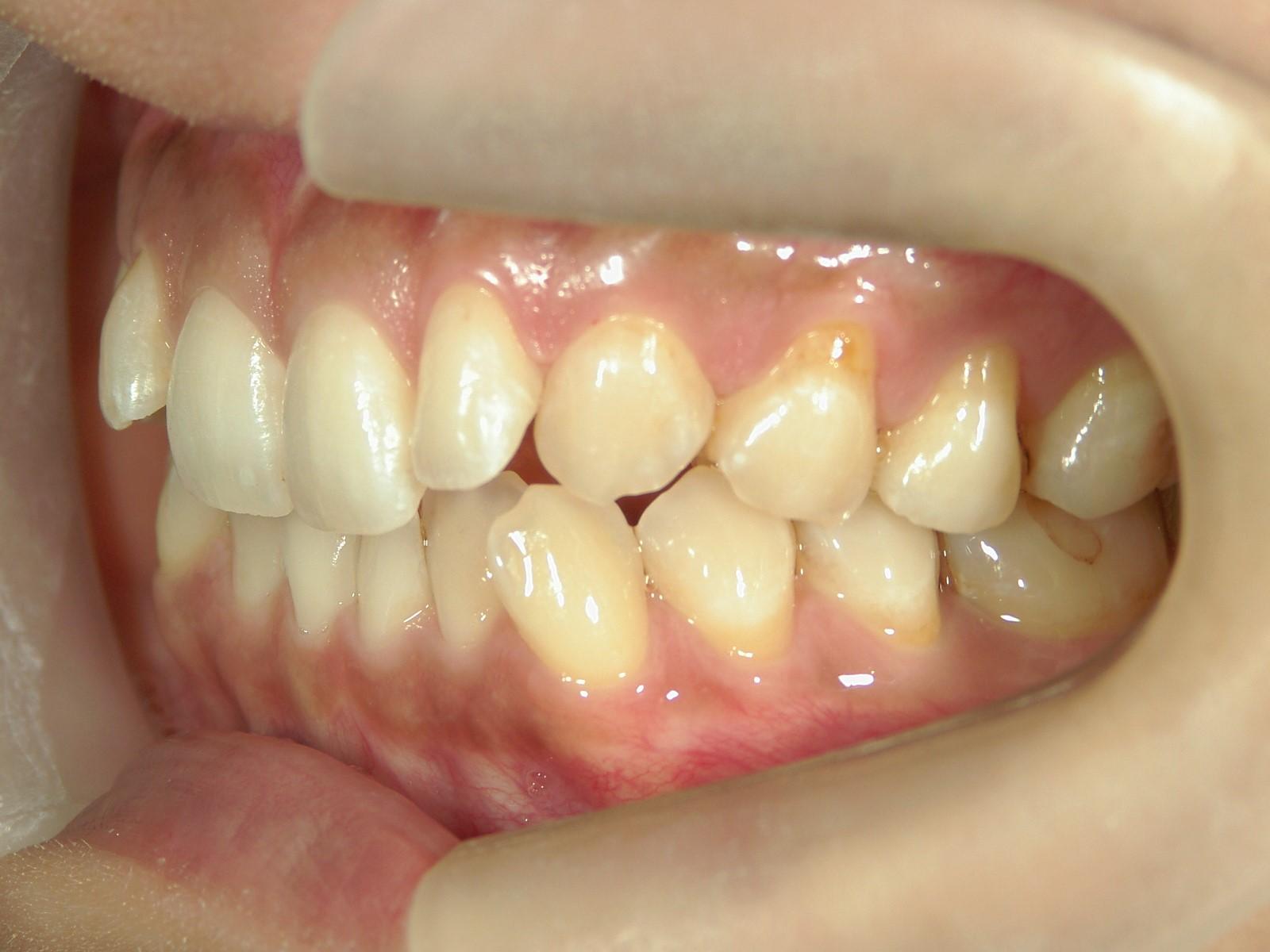 舌側ワイヤー矯正 症例(23)