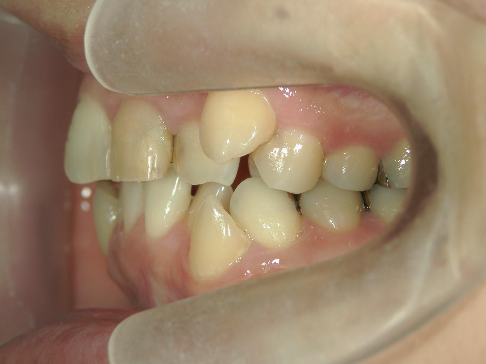 全顎ワイヤー矯正 症例(17)