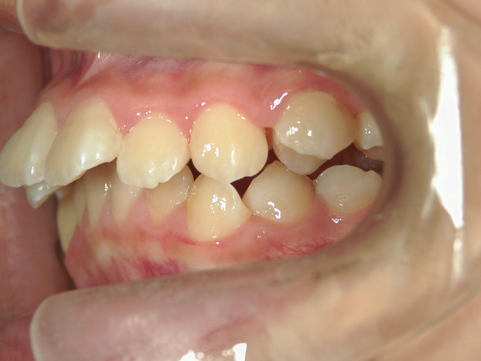 全顎ワイヤー矯正 症例(34)