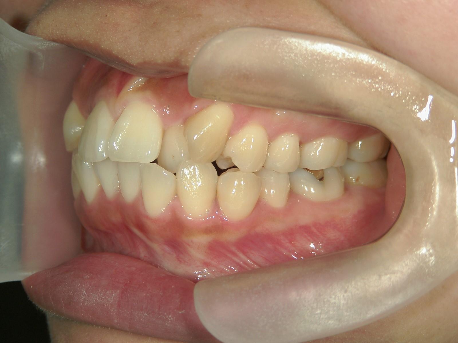 全顎ワイヤー矯正 症例(40)