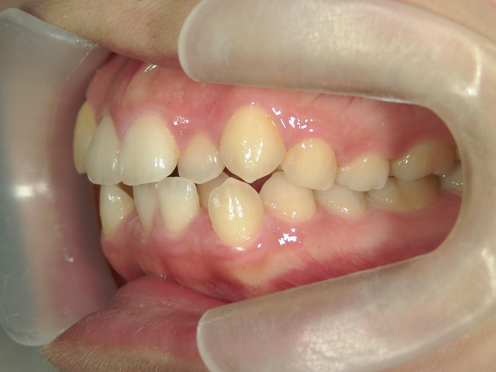 全顎ワイヤー矯正 症例(46)