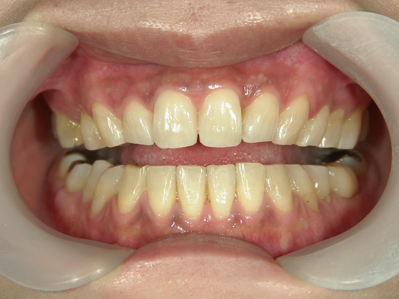 プチ舌側ワイヤー矯正 症例(18)