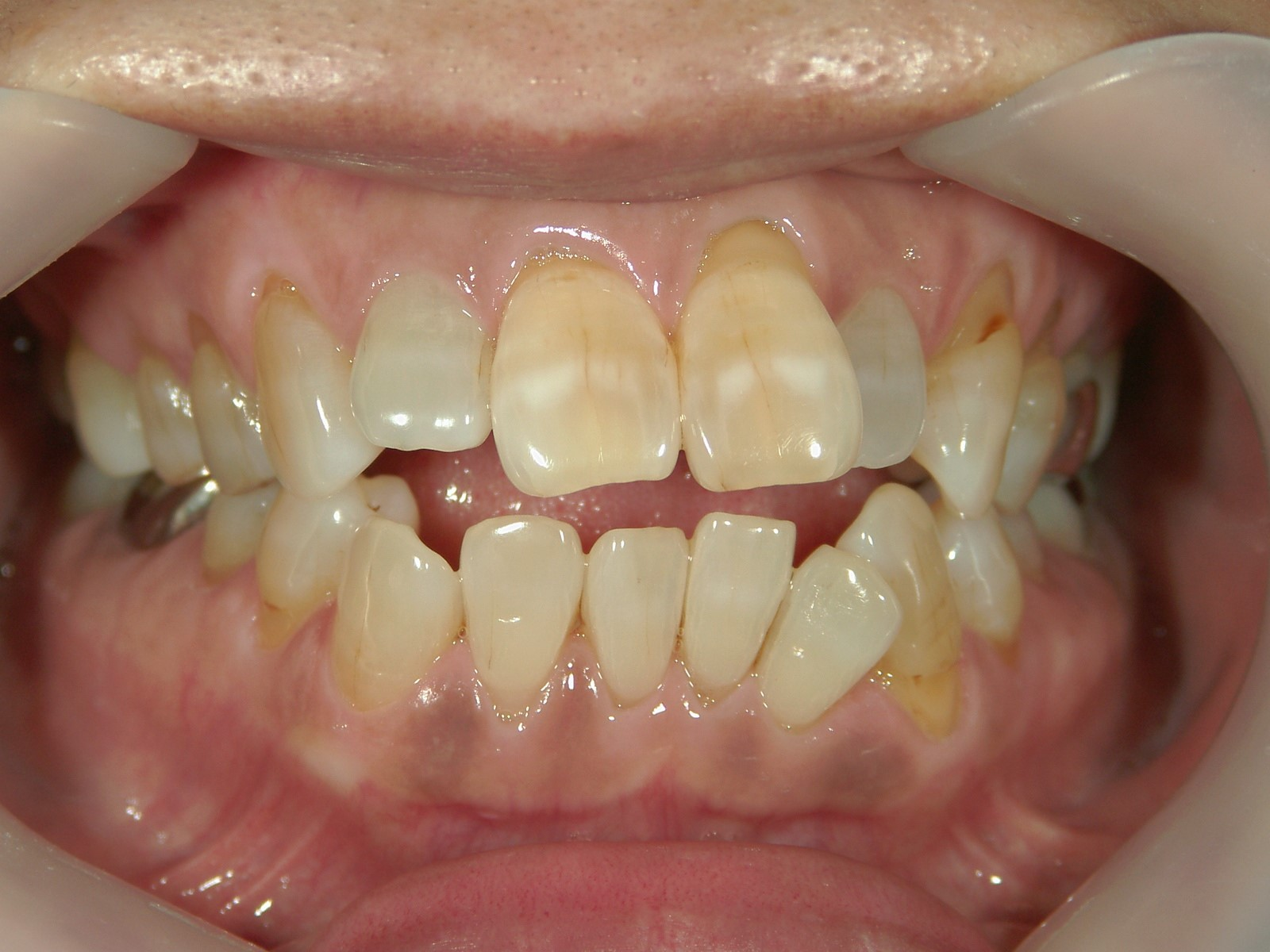 舌側ワイヤー矯正 症例(15)