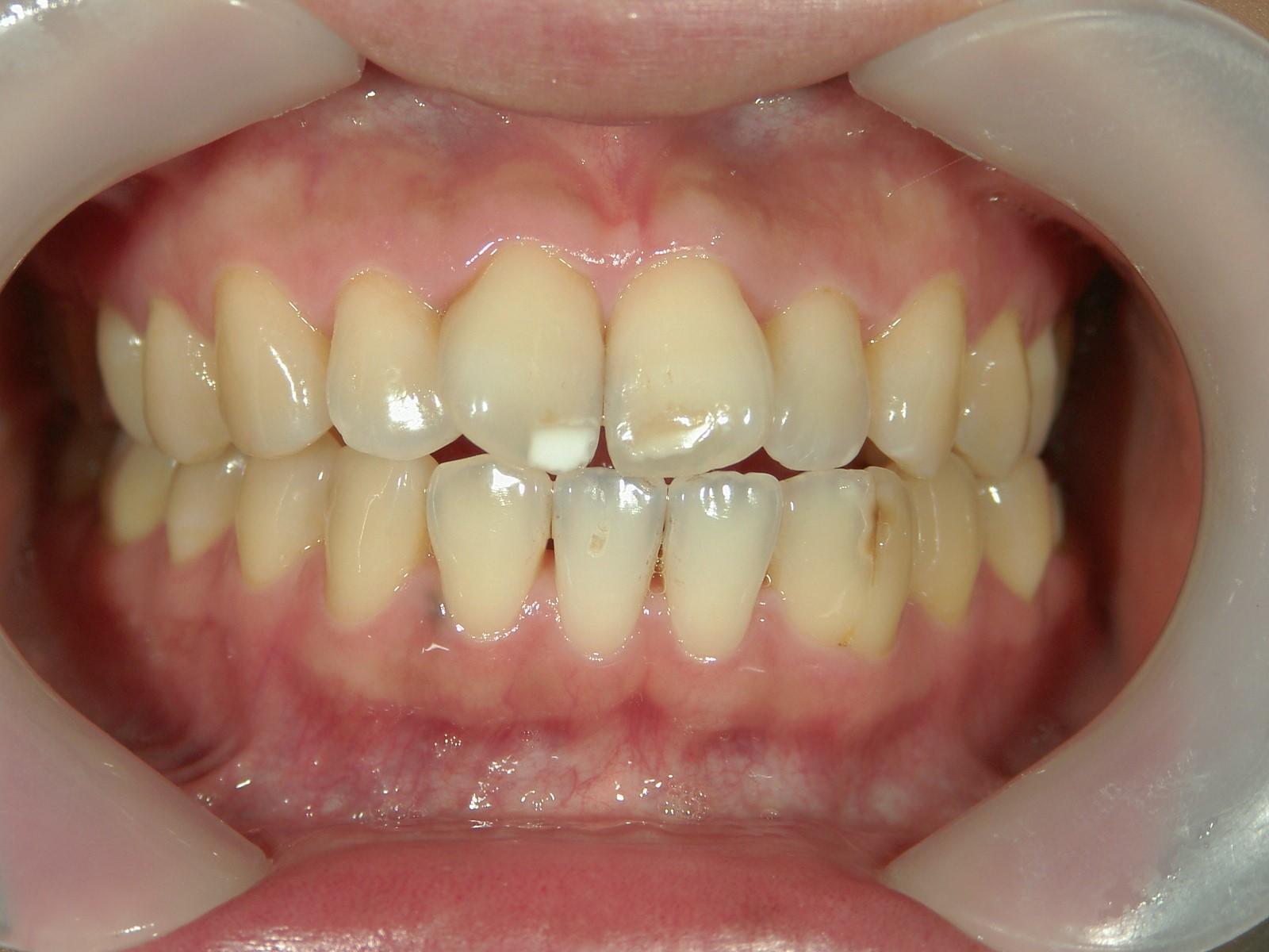 舌側ワイヤー矯正 症例(16)