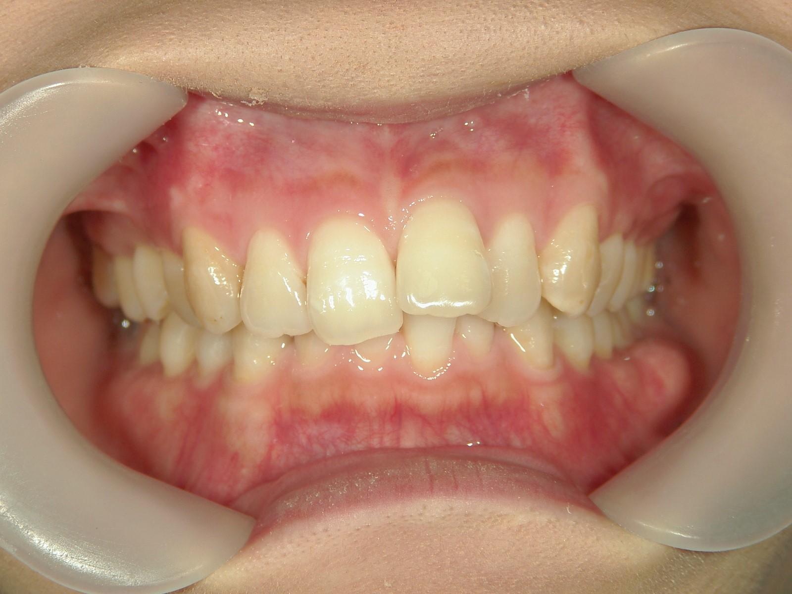 プチ舌側ワイヤー矯正 症例(24)
