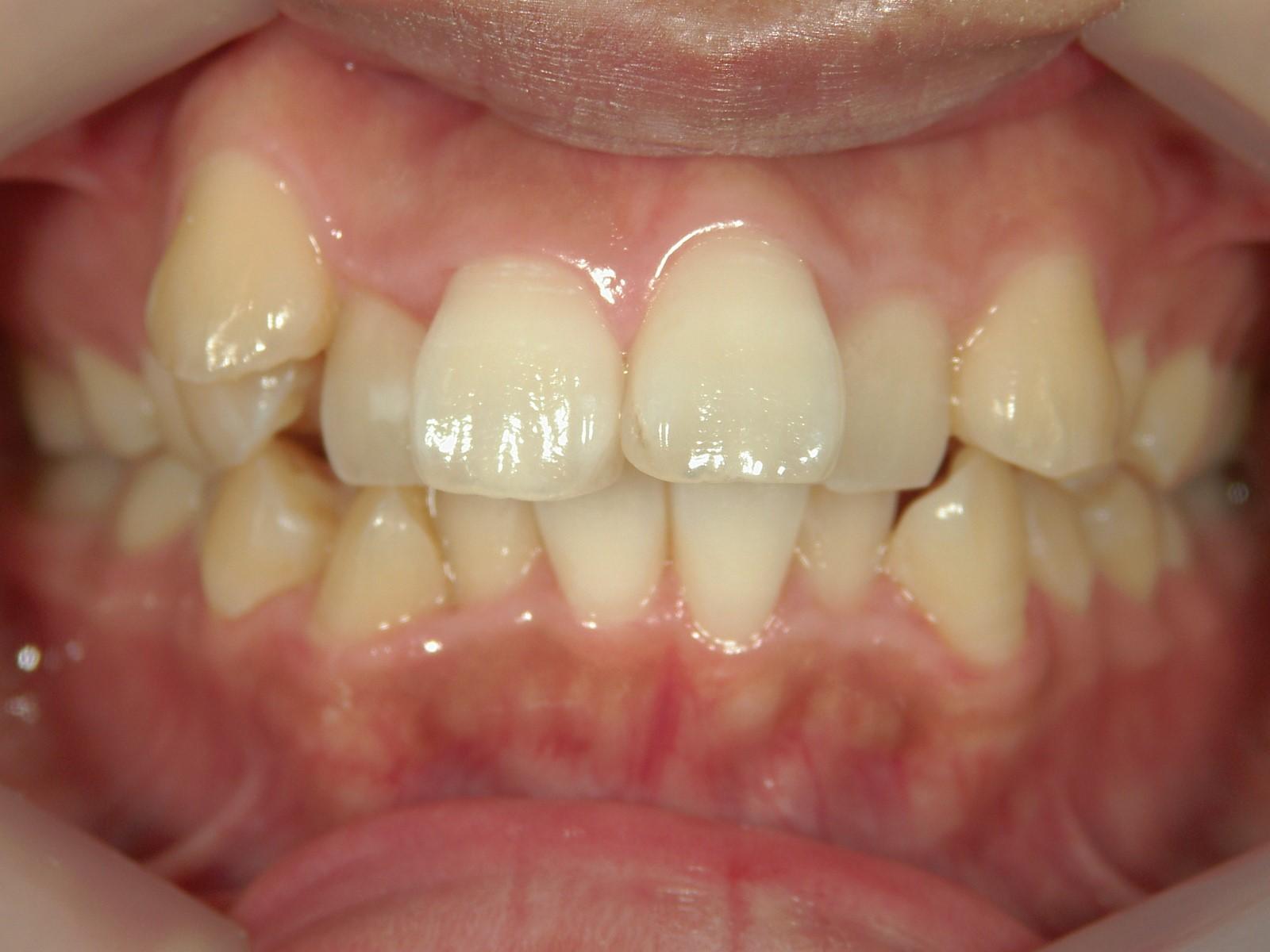 全顎ワイヤー矯正 症例(20)