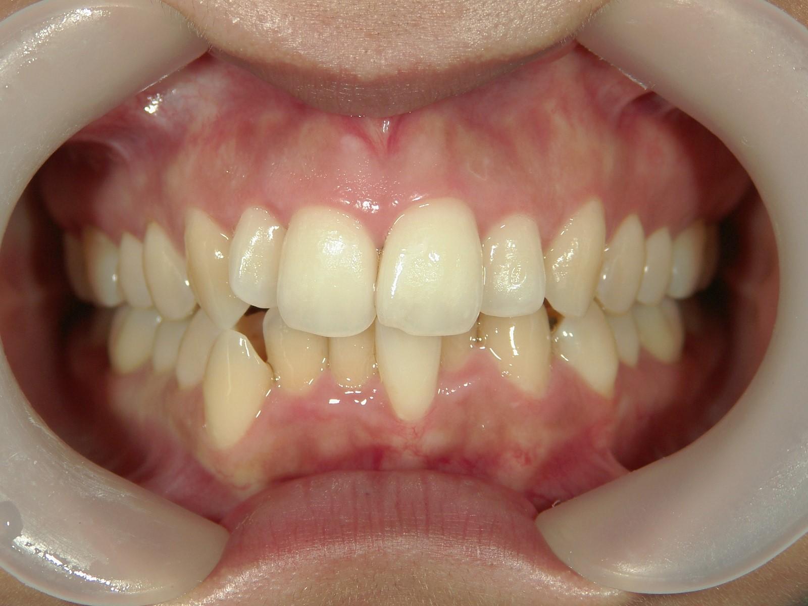 全顎ワイヤー矯正 症例(23)
