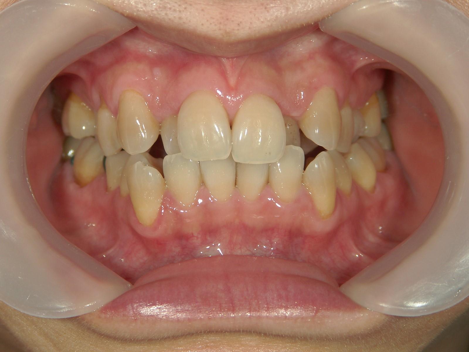 全顎ワイヤー矯正 症例(32)