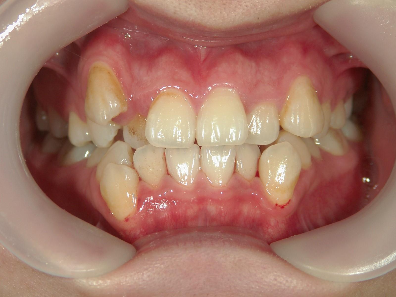 全顎ワイヤー矯正 症例(36)