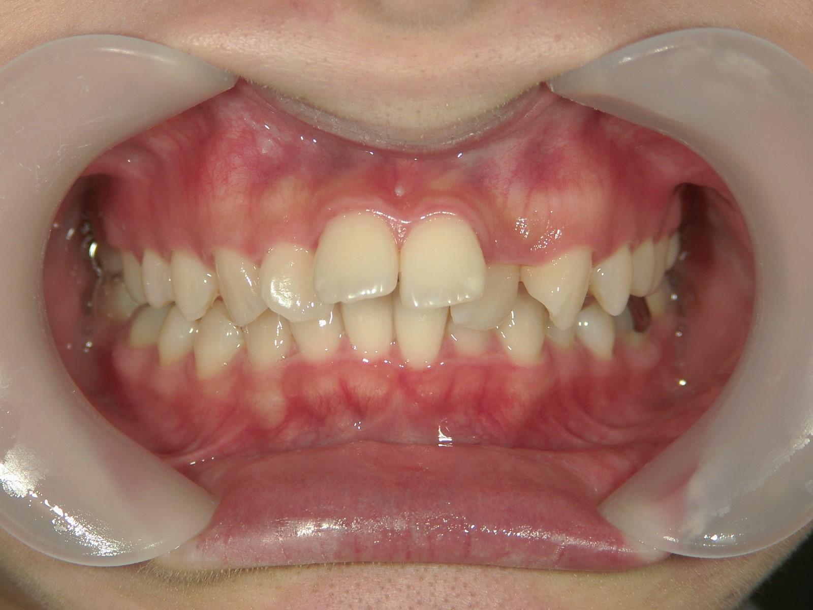 全顎ワイヤー矯正 症例(42)