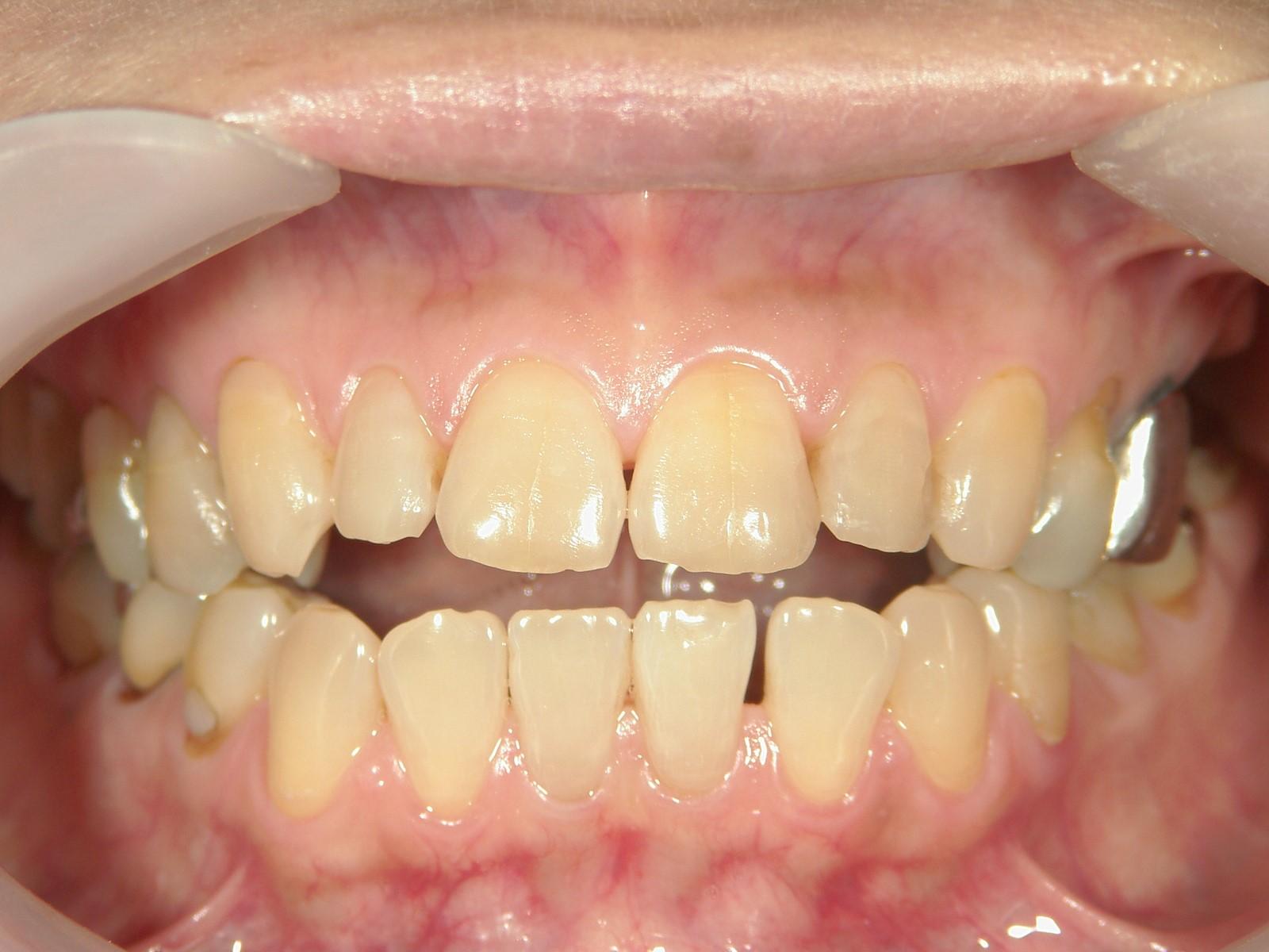 全顎ワイヤー矯正 症例(48)